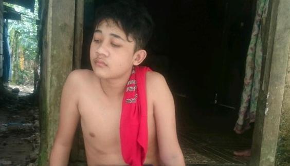 Irol Rahman Lumpuh Akibat Infeksi Tulang