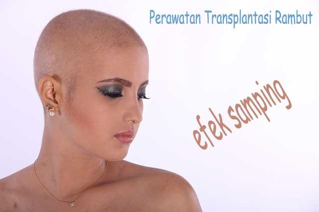 prosedur transplantasi rambut dan efek sampingnya