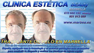 trasplante pelo Clínica Estética  injertos pelo para mujeres  o para hombres y Marbella y en Málaga: Te ofrecemos la mayor calidad de nuestroservicio con los mejores