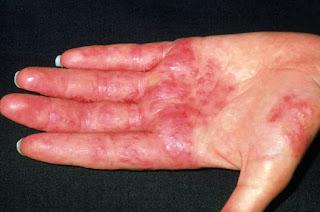 Obat dermatitis ampuh