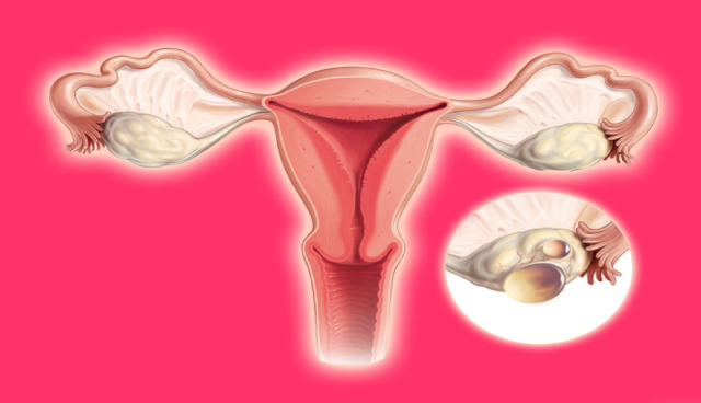 Natural Ways On How Get Rid Of Your Ovarian Cysts Using this Remedies Available On Your Kitchen!