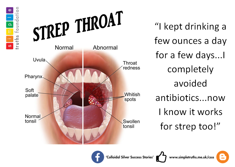 signs-of-strep-throat-and-adult-naket-sexy-girl
