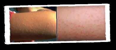 MooGoo Skin Care
