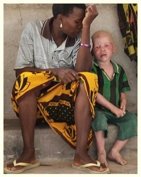 In Tanzania persons with albinism, PWA are facing the daily horror of a rapidly growing industry in the sale of albino body parts.