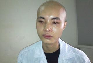 Bệnh nhân mắc bệnh ung thư