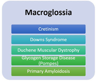 Cretinism Downs Syndrome Duchene Muscular Dystrophy Glycogen Storage Disease (Pompes) Primary Amyloidosis