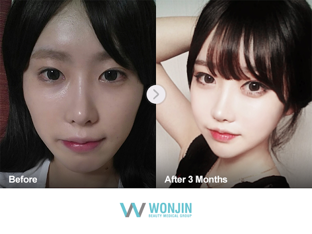 Korean plastic surgery review