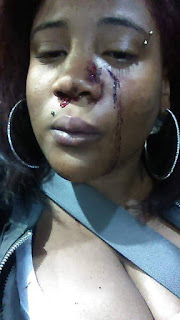 He beat me like a dog - Pregnant woman battered by her baby daddy