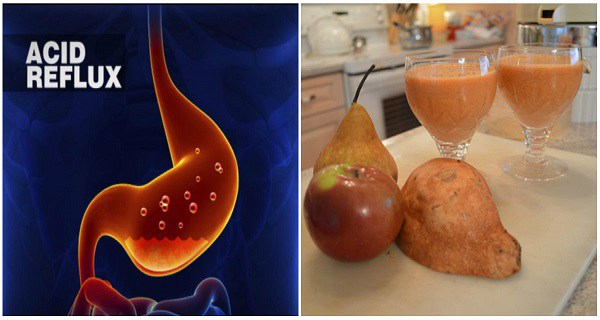 Miraculous 2-Ingredient Natural Remedy Against Acid Reflux