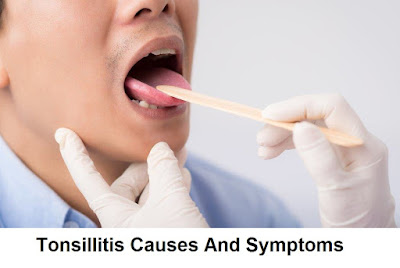 An tonsillitis can be caused by a virus or by a bacterium Chronic Tonsillitis Causes And Symptoms
