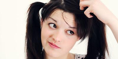 merupakan binatng benalu yang hidup di rambut kepala insan 4 Cara Membasmi Kutu Rambut Secara Alami