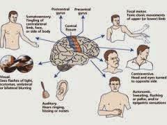 Penyakit Ayan dan Obat Herbalnya