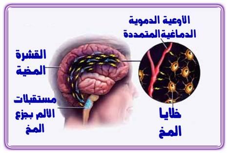 الصداع النصفي انواعه اسبابه وعلاجه 1.jpg