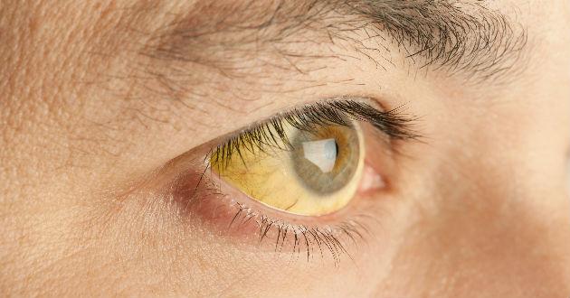 Pengobatan Penyakit Mata Kuning Tradisional