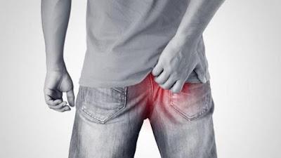 Infecţii rectale transmise pe cale  sexuală