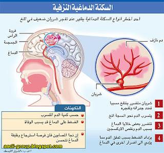 أربع مسببات للسكتة الدماغية عند الرجال Stroke in men