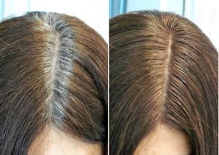 3 Bài thuốc dân gian chống bạc tóc sớm cực kỳ hiệu quả