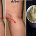 Easy Natural Remedies to Treat Varicose Veins