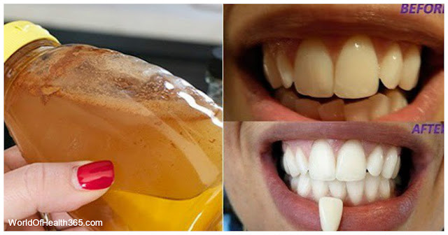 GARGLE WITH JUST ONE INGREDIENT AND SEE WHAT WILL HAPPEN TO YOUR TEETH!