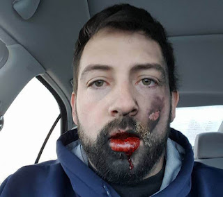 Electronic cigarette explodes in man's face