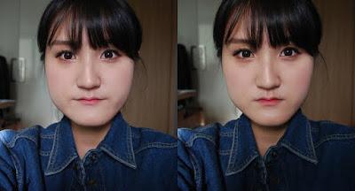 Sebelum reduksi rahang persegi & operasi dua rahang Wonjin