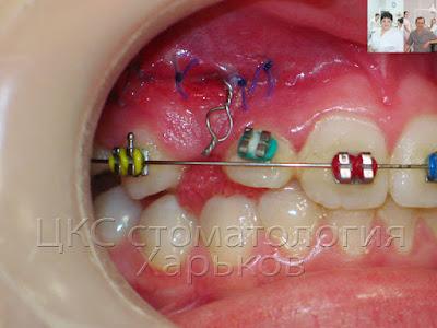 Фото зубов в начале лечения ретинированного клыка