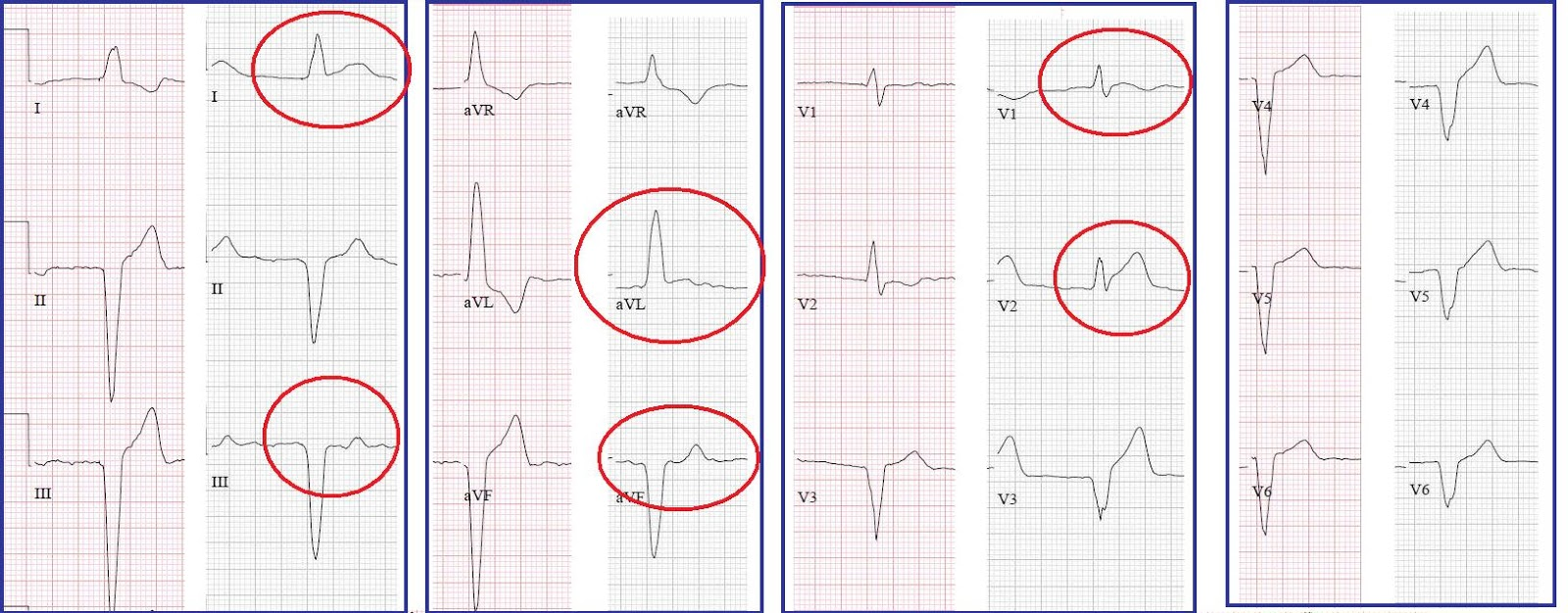 how to find hte j point ecg