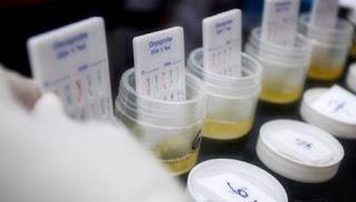 Biaya Test Bebas Narkoba di Beberapa Kota