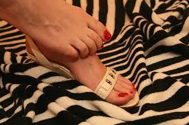 Punca Kulit kaki mengelupas