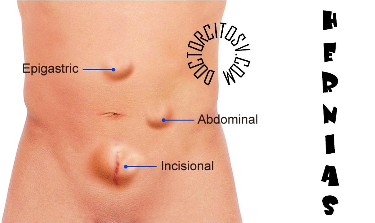 ¿qué es un bulto en el abdomen