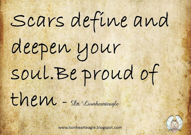 Scars define and deepen your soul.Be proud of them