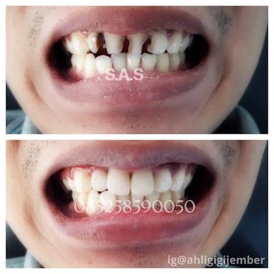 Foto hasil perbaikan gigi depan keropos berlubang hitam dan bolong dengan komposite laser