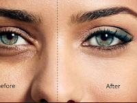 7 ways a massage to reduce the black ring on the eyelids