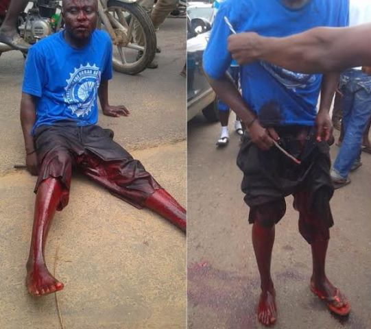 Unidentified person cuts off man's p€nis (photos)