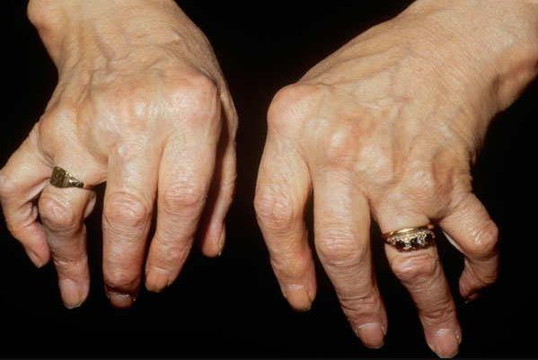 Multiple Myeloma Bone Cancer