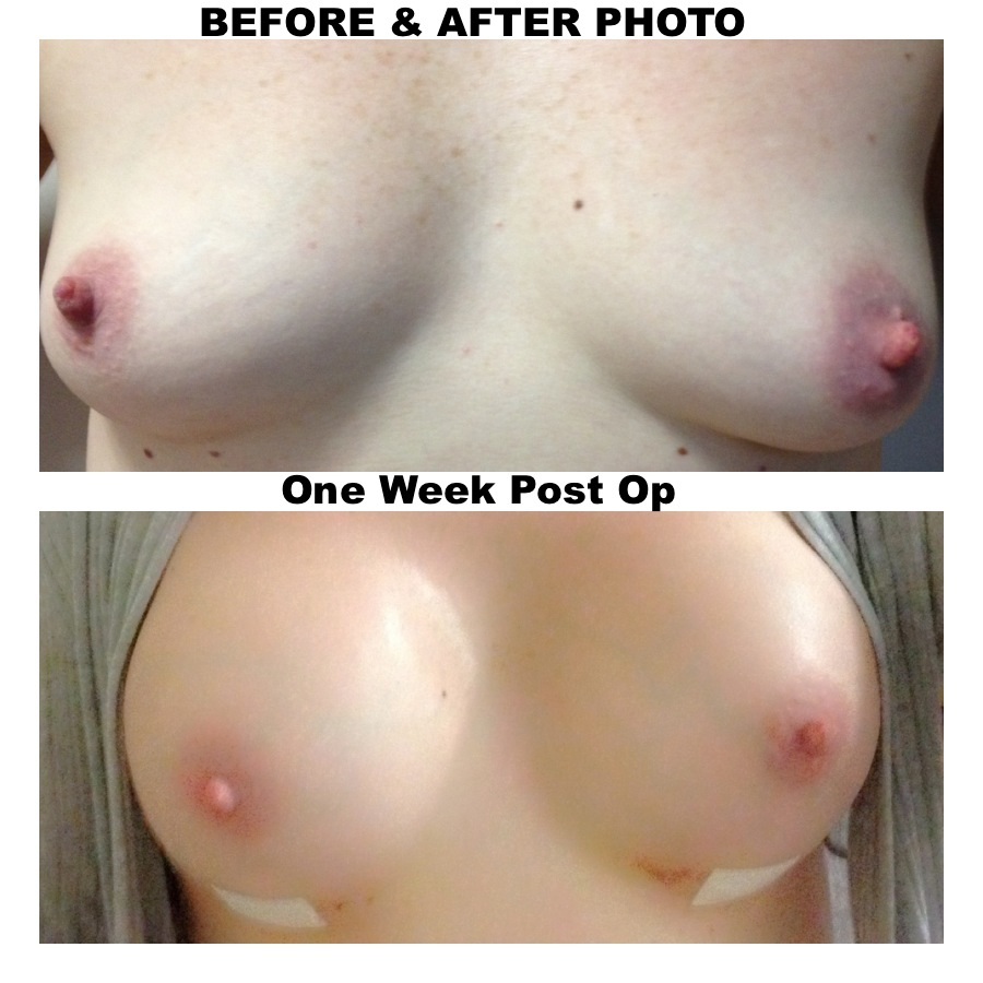 a womans boobs before and after puberty