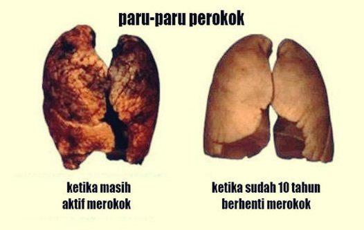 penampakan bentuk paru-paru perokok dan tidak