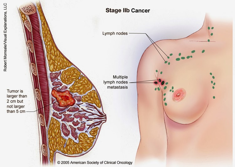 breast cancer stages and types