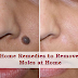 4 Home Remedies to Remove Moles at Home