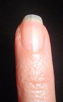 trimmed off hangnail