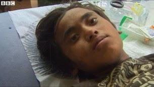 Un băiat care a fost scos de sub dărâmături după cinci zile de la cutremurul din Nepal. El a supravieţuit datorită faptului că a mâncat unt - poză capturată de BBC