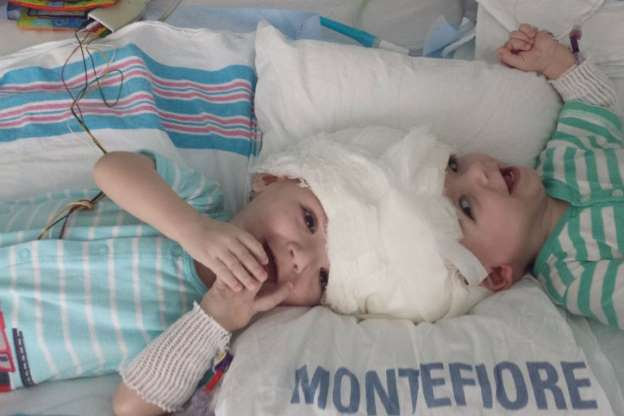Conjoined Twins Look Stunned to See Each Other for First Time After Being Separated