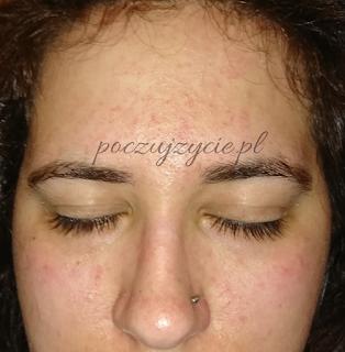 Łojotokowe zapalenie skóry na twarzy
