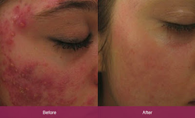 Chemical Peels Eliminate Acne Scars