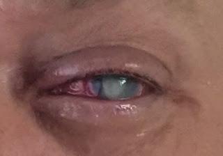 Προσοχή: Αυτός ο άνδρας τυφλώθηκε λόγω ενός λάθους που επαναλαμβάνουμε όλοι μας καθημερινά