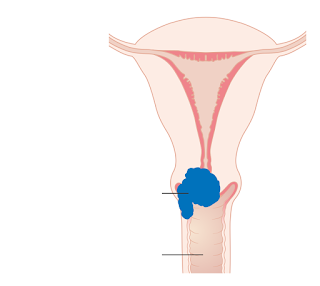 what is cervical cancer what causes cervical cancer how cervical cancer develops what are the risk factors