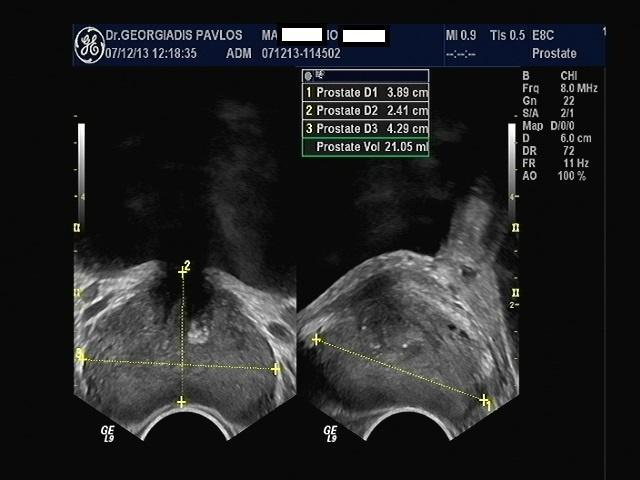 laparoszkópos veseműtét Prostatitis az életkorban