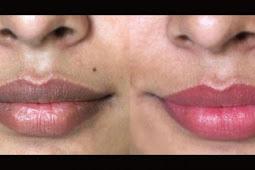 Lakukan Cara Ini, Agar Bibir Menjadi Merah