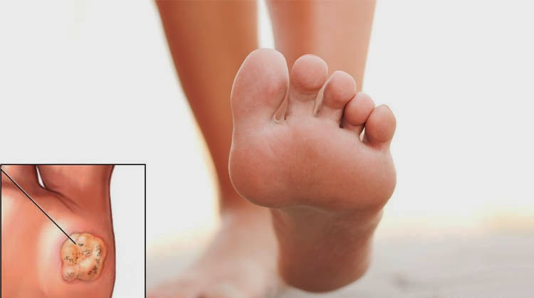 how to remove plantar warts at home