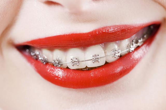 Wady i zalety noszenia aparatu ortodontycznego- Moje doświadczenie